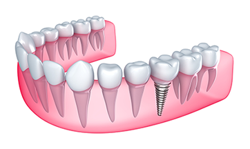 Dental Implants in Smyrna, GA